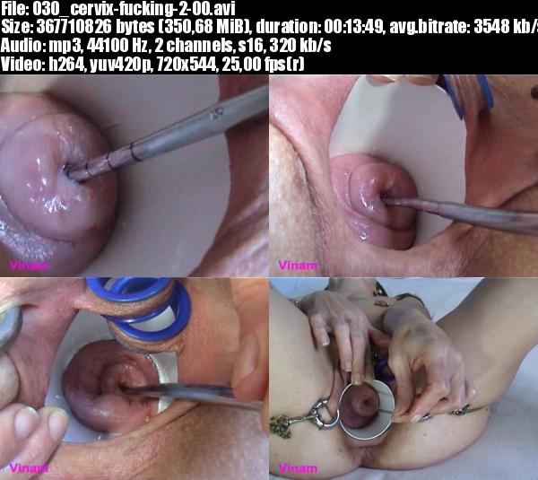Sex und erweiterte Zervix